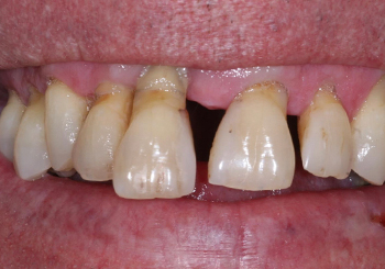 Before Dental Implants in Walsall