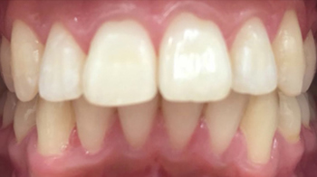 Post-op Dental Braces in Walsall Birmingham