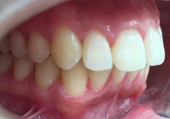 Post-op Teeth Straightening in Walsall Birmingham