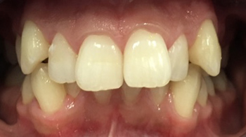 Pre-op Dental Braces in Walsall Birmingham